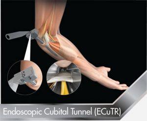 Endoscopic Cubital Tunnel (ECuTR)