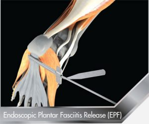 Endoscopic Plantar Fasciitis (EPF)