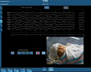 CNS Video Camera