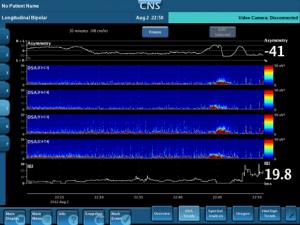 CNS Advanced ICU Amplifier