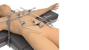 Anterior Lumbar System