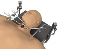 Small Incision System