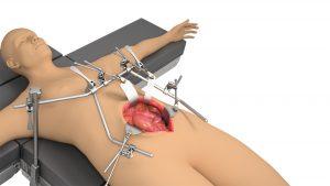 General, Vascular System