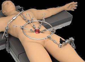 Anterior Lumbar Ring System
