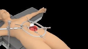 Thompson RingTrack General / Vascular / Trauma System